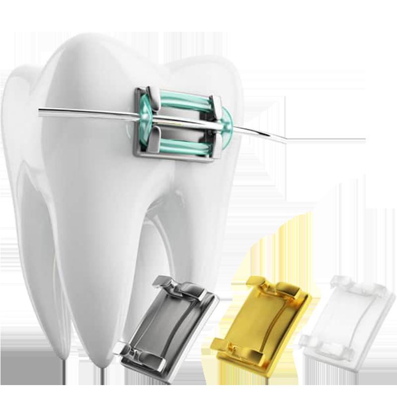 Ортодонтія<br>(вирівнювання зубів)